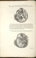 De Ossium Capitis et Maxillae superioris foraminibus. Caput XII. Fig.II-III