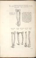 De Cubiti ossibus, ulna nimmimirum, et radio. Caput XXIIII. Fig.I-VI