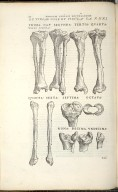 De Tibiae Osse Et Fibula. Ca. XXXI. Fig.I-XI