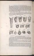 De Laryngis Musculis, Caput XXI. Figs.I-XIII