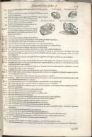 De Pedis Ossibus. Cap. XXXIII. Fig.X-XIII