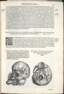 De Ossium Capitis et Maxillae superioris foraminibus. Caput XII. Fig:I-II