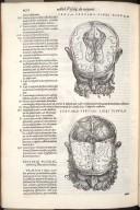 Sexta Septimi Libri Figura, Septima Septimi Libri Figura