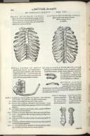 De thoracis ossibus. Caput XIX. Fig.I-VII